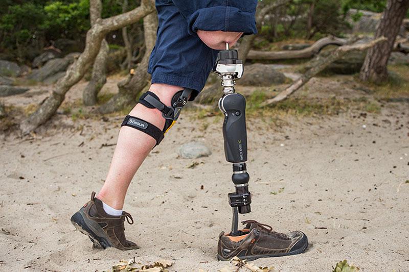osseointegration of knee